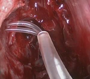 מראה מתוך האף לאחר ניתוח מעקף של חסימה בצינור הדמעות והכנסת צינוריות סיליקון