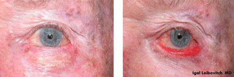ectropion-before-after